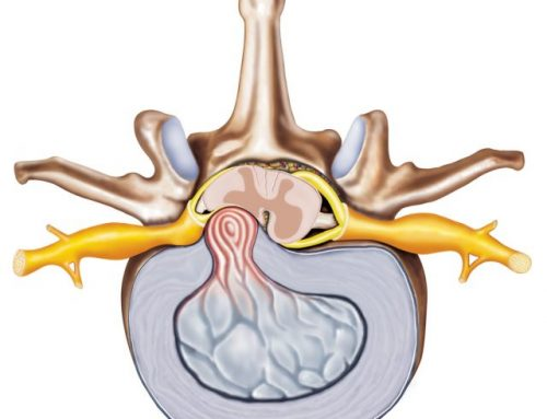 Forskning i diskusprolaps og stenose